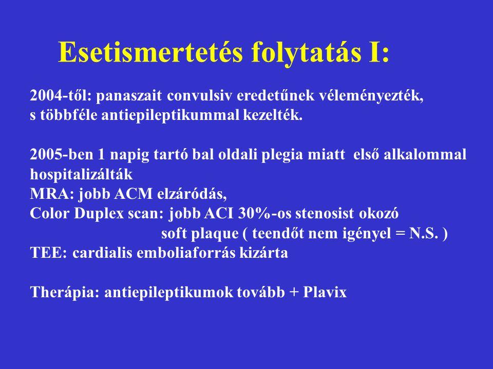 Esetismertetés folytatás I: 2004-től: panaszait convulsiv eredetűnek véleményezték, s többféle antiepileptikummal kezelték. 2005-ben 1 napig tartó bal