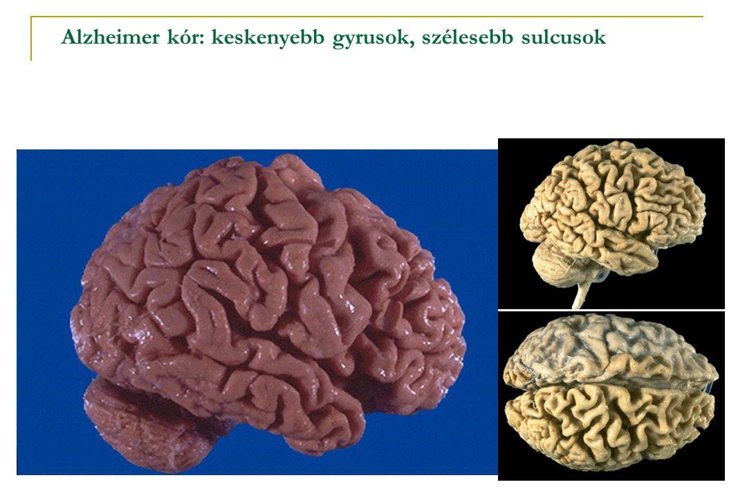 Alzheimer kór: keskenyebb gyrusok, szélesebb sulcusok