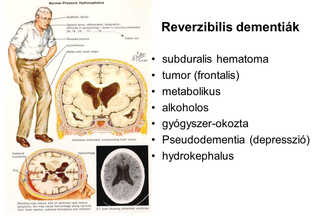 Reverzibilis dementiák •subduralis hematoma •tumor (frontalis) •metabolikus •alkoholos •gyógyszer-okozta •Pseudodementia (depresszió) •hydrokephalus