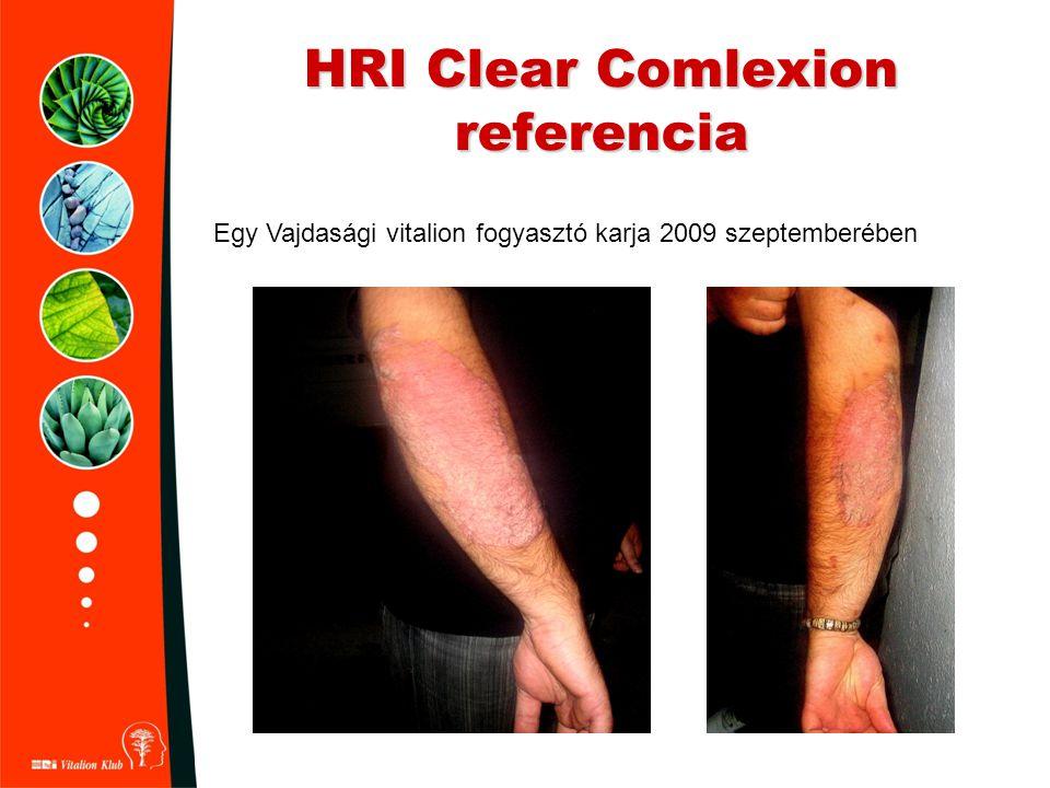 HRI Clear Comlexion referencia Egy Vajdasági vitalion fogyasztó karja 2009 szeptemberében
