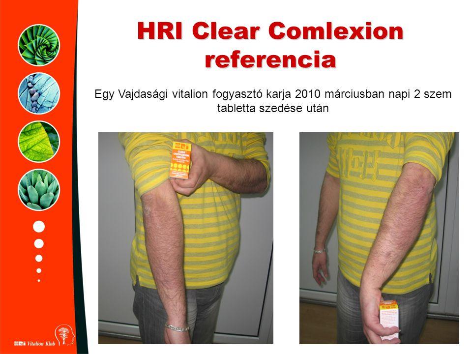 HRI Clear Comlexion referencia Egy Vajdasági vitalion fogyasztó karja 2010 márciusban napi 2 szem tabletta szedése után