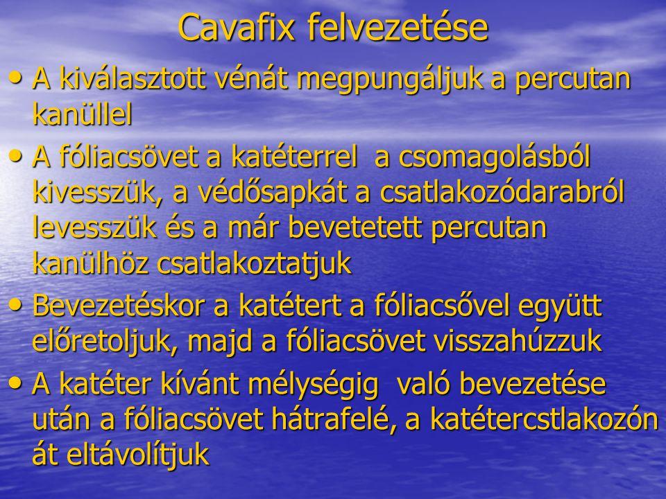 Cavafix felvezetése • A kiválasztott vénát megpungáljuk a percutan kanüllel • A fóliacsövet a katéterrel a csomagolásból kivesszük, a védősapkát a csa