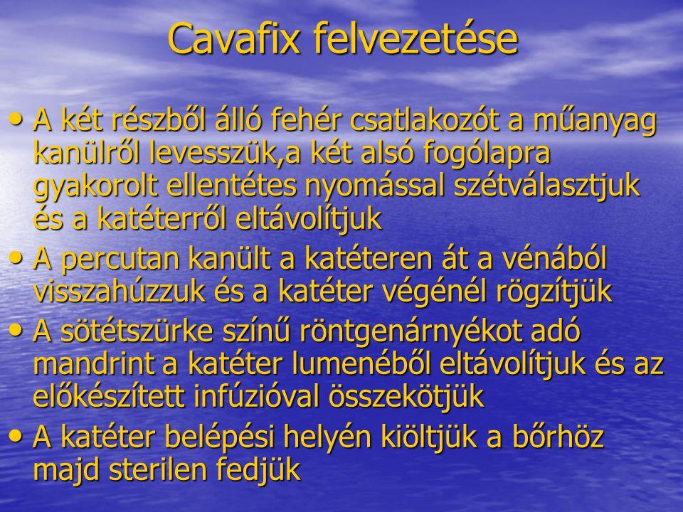 Cavafix felvezetése • A két részből álló fehér csatlakozót a műanyag kanülről levesszük,a két alsó fogólapra gyakorolt ellentétes nyomással szétválasz