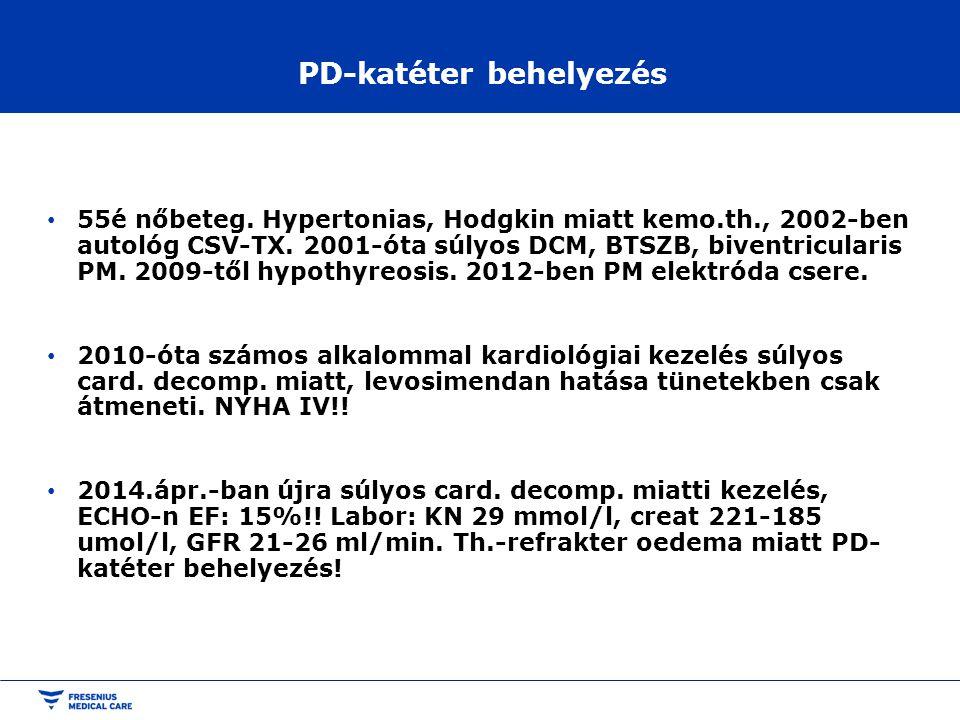 PD-katéter behelyezés • 55é nőbeteg. Hypertonias, Hodgkin miatt kemo.th., 2002-ben autológ CSV-TX. 2001-óta súlyos DCM, BTSZB, biventricularis PM. 200