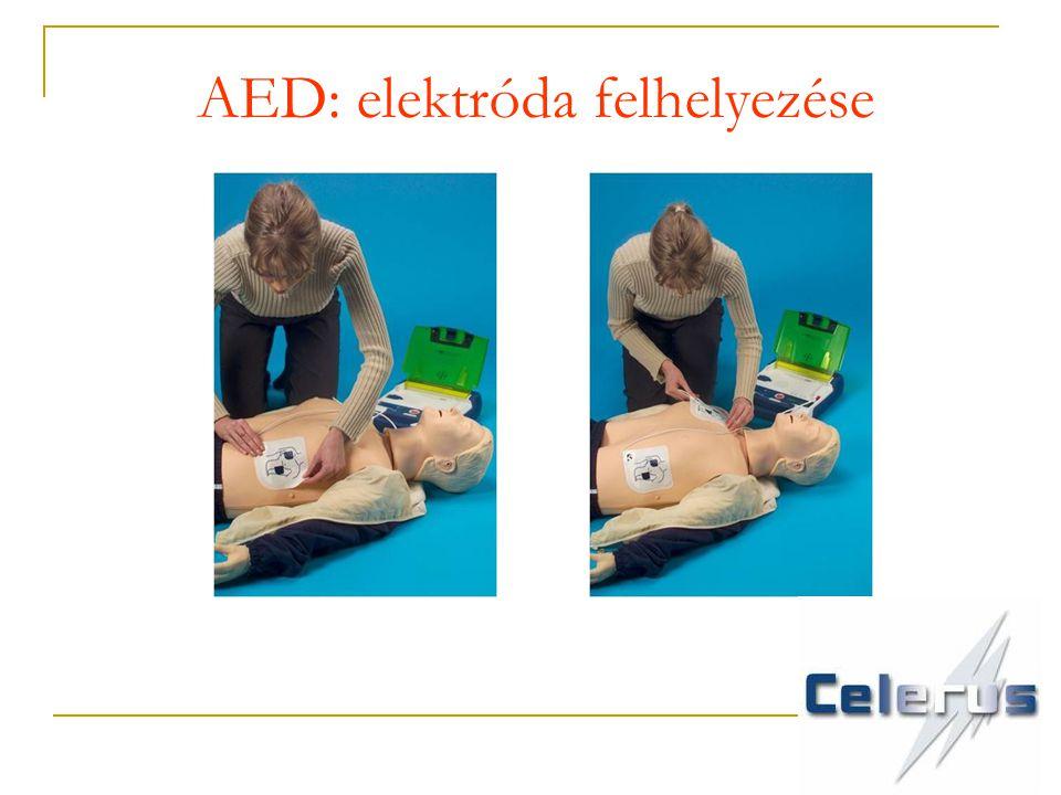 AED: elektróda felhelyezése