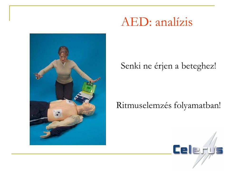 AED: analízis Senki ne érjen a beteghez! Ritmuselemzés folyamatban!