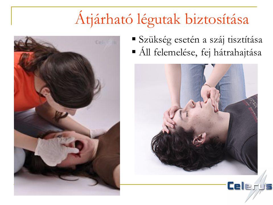  Szükség esetén a száj tisztítása  Áll felemelése, fej hátrahajtása Átjárható légutak biztosítása