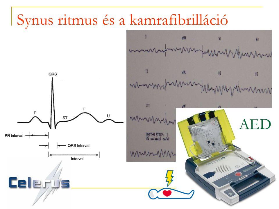 Synus ritmus és a kamrafibrilláció AED