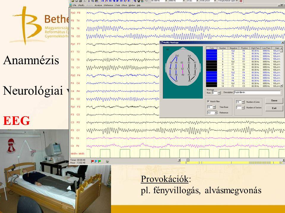 Epilepszia diagnosztika elemei Anamnézis Neurológiai vizsgálat EEG Képalkotó vizsgál Videó-EEG monit Provokációk: pl. fényvillogás, alvásmegvonás