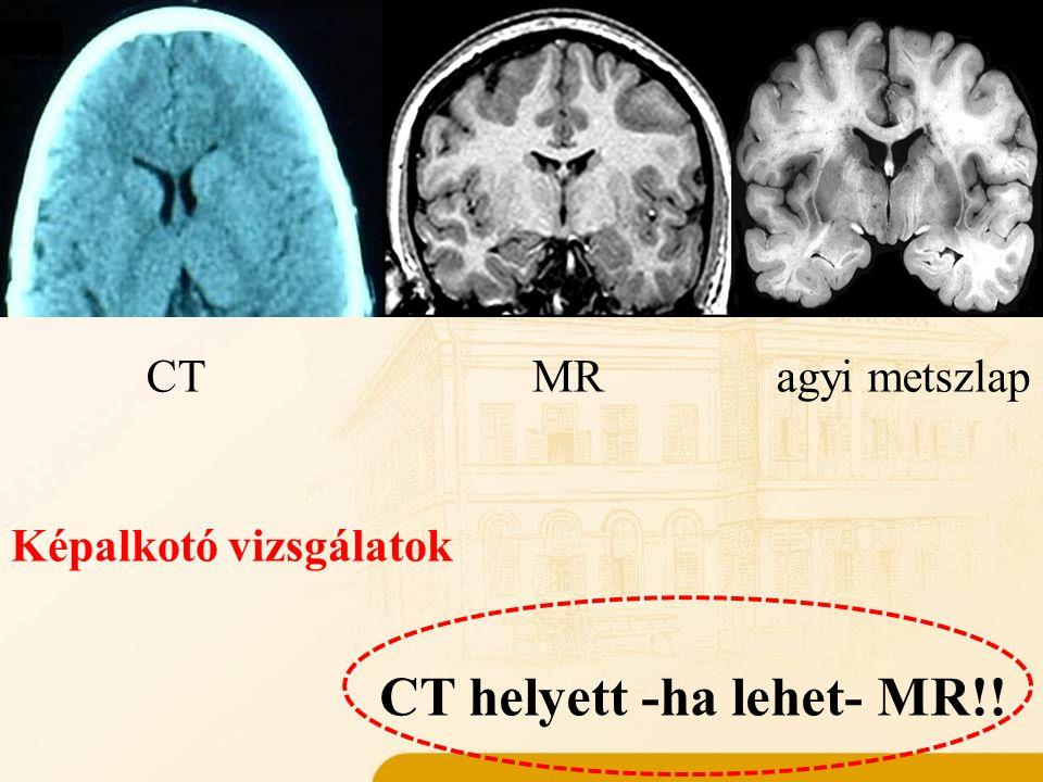 Műtéti kivizsgálás elemei Anamnézis Képalkotó vizsgálatok CT helyett -ha lehet- MR!! CTMRagyi metszlap