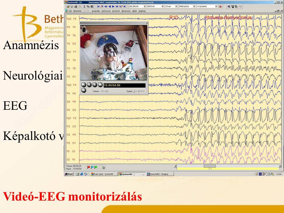 Műtéti kivizsgálás elemei Anamnézis Neurológiai vizsgálat EEG Képalkotó vizsgálatok Videó-EEG monitorizálás