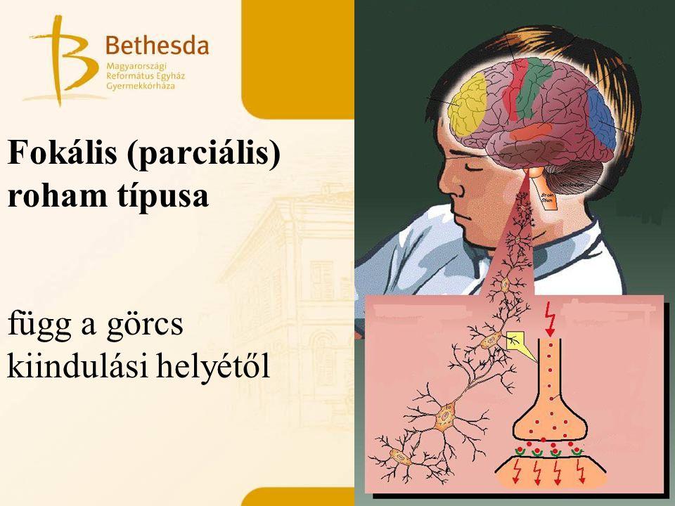 Fokális (parciális) roham típusa függ a görcs kiindulási helyétől