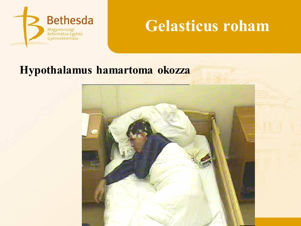 Gelasticus roham Hypothalamus hamartoma okozza