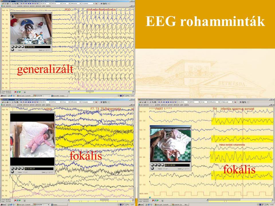 EEG rohamminták fokális generalizált fokális