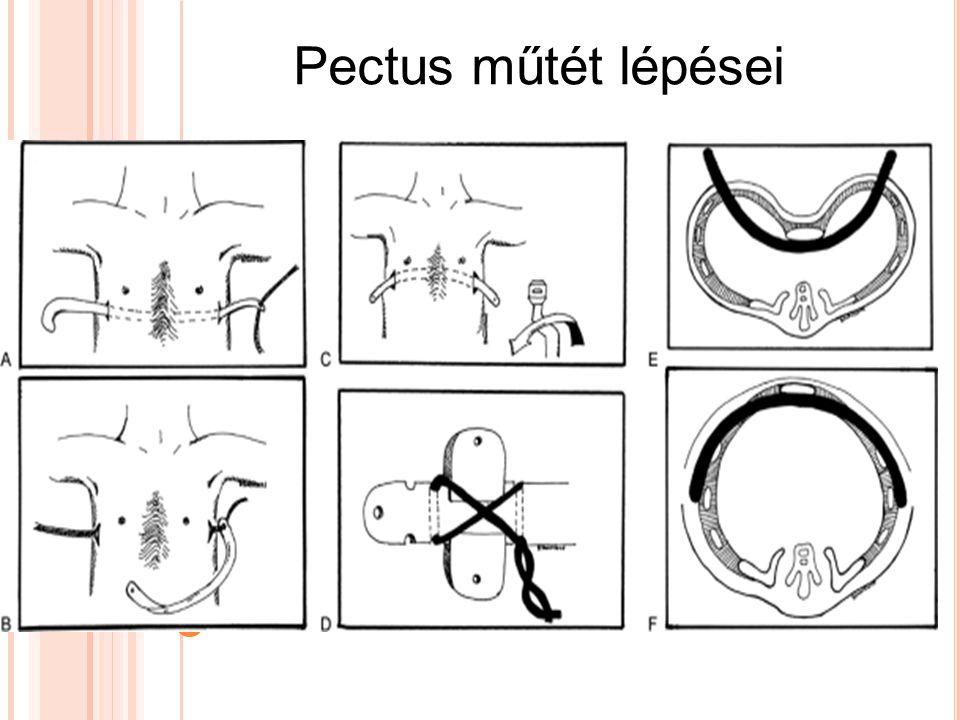 Pectus műtét lépései