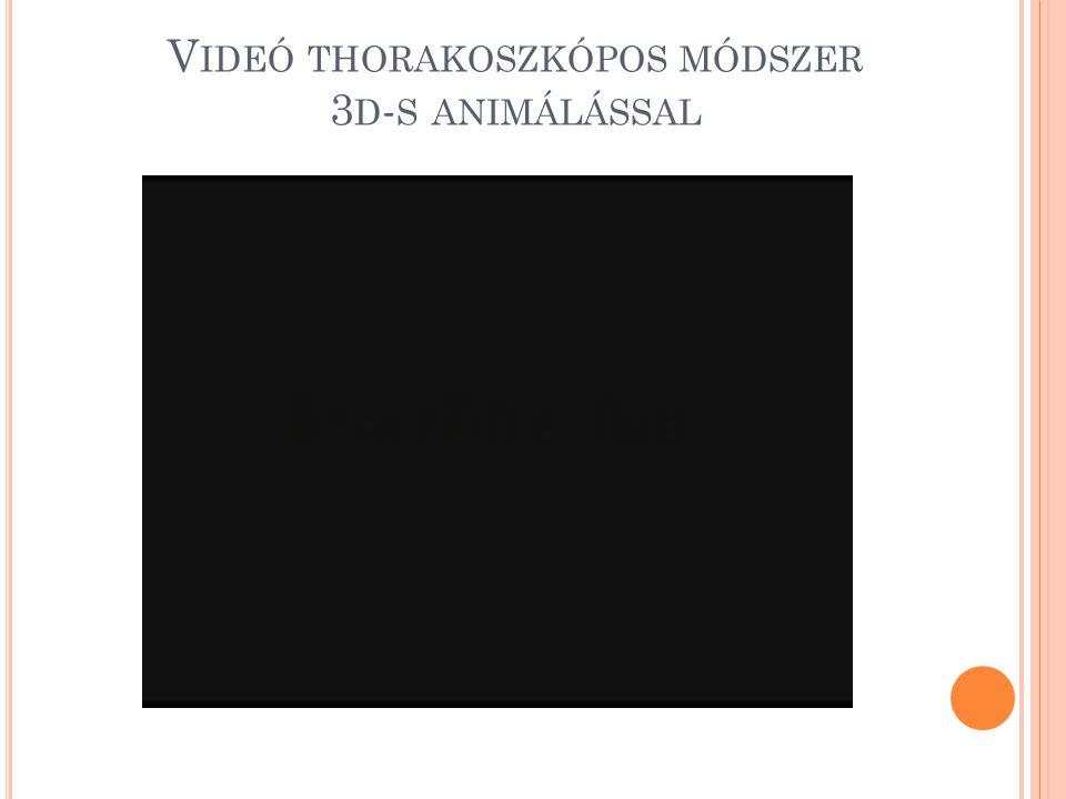 V IDEÓ THORAKOSZKÓPOS MÓDSZER 3 D - S ANIMÁLÁSSAL