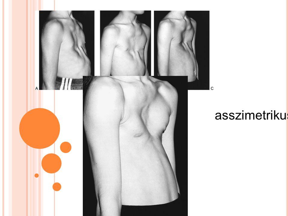 asszimetrikus