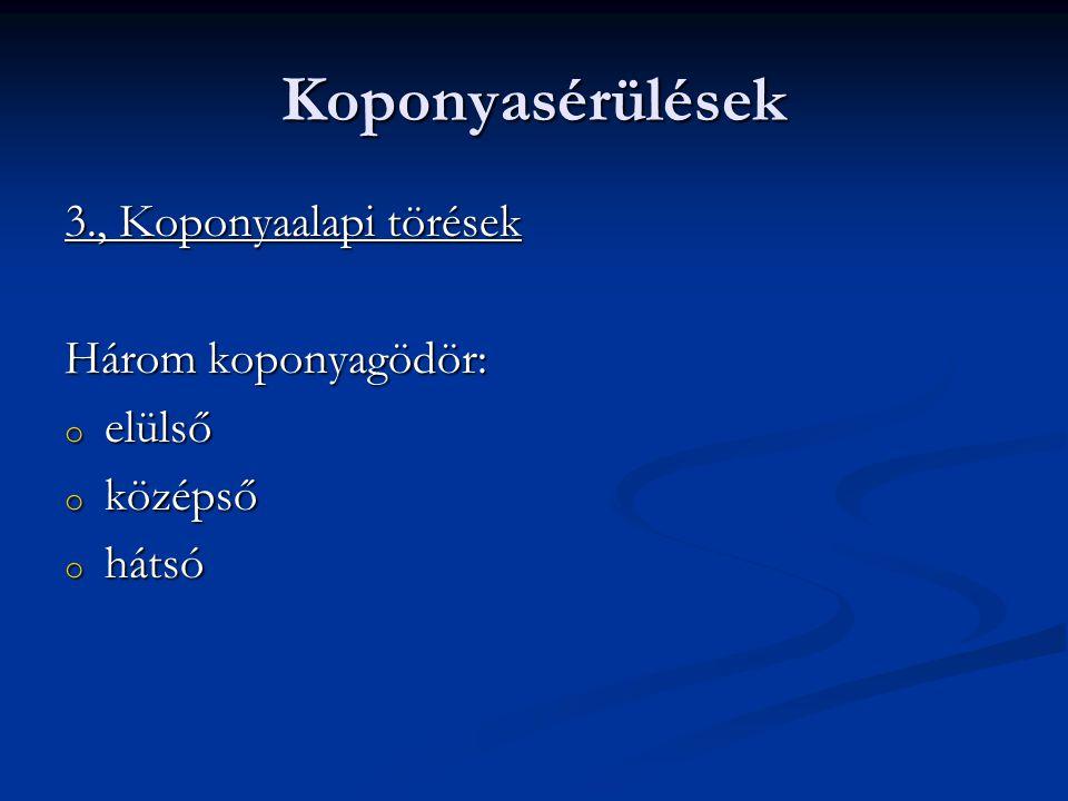 Koponyasérülések 3., Koponyaalapi törések Három koponyagödör: o elülső o középső o hátsó