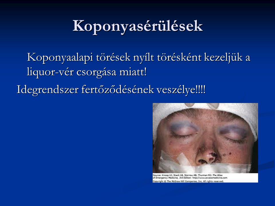 Koponyasérülések Koponyaalapi törések nyílt törésként kezeljük a liquor-vér csorgása miatt! Idegrendszer fertőződésének veszélye!!!!