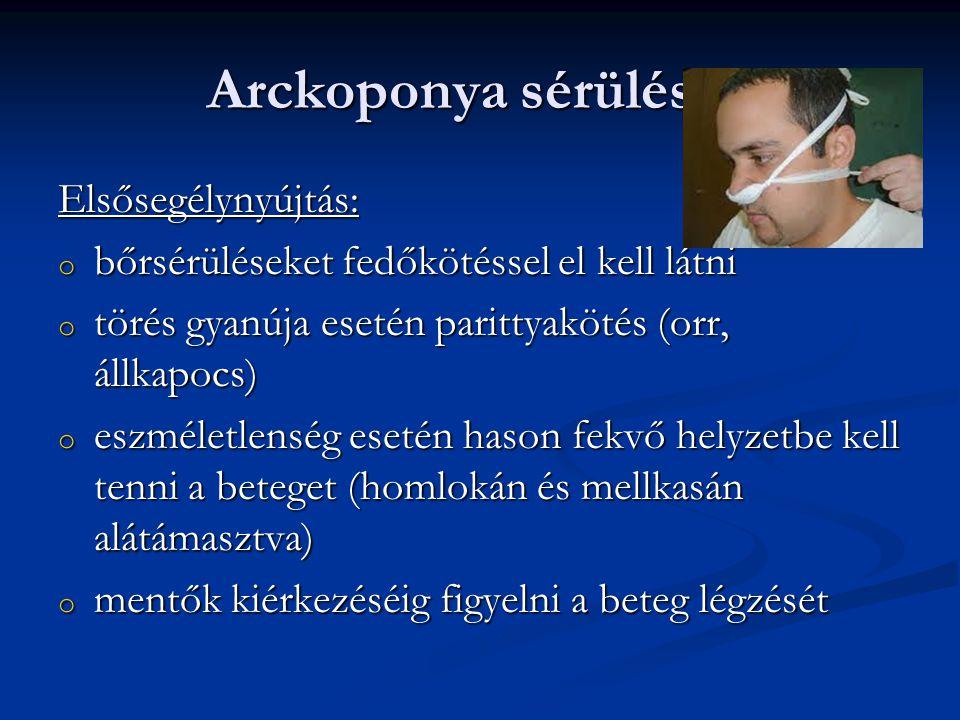 Arckoponya sérülések Elsősegélynyújtás: o bőrsérüléseket fedőkötéssel el kell látni o törés gyanúja esetén parittyakötés (orr, állkapocs) o eszméletle