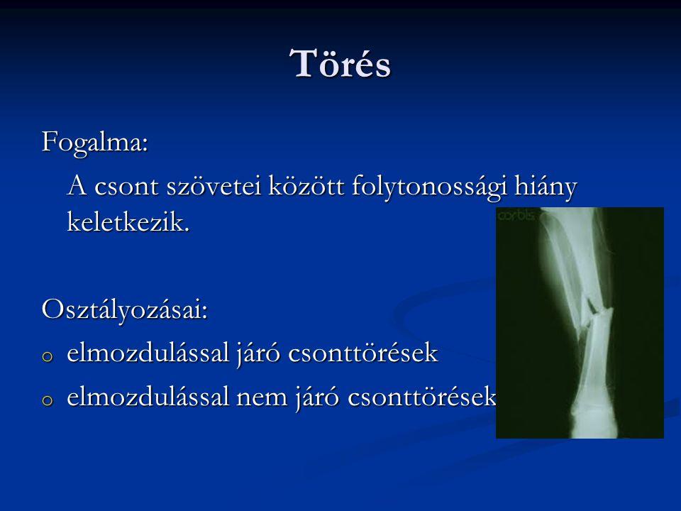 Törés Fogalma: A csont szövetei között folytonossági hiány keletkezik. Osztályozásai: o elmozdulással járó csonttörések o elmozdulással nem járó csont