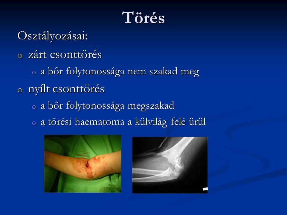 Törés Osztályozásai: o zárt csonttörés o a bőr folytonossága nem szakad meg o nyílt csonttörés o a bőr folytonossága megszakad o a törési haematoma a