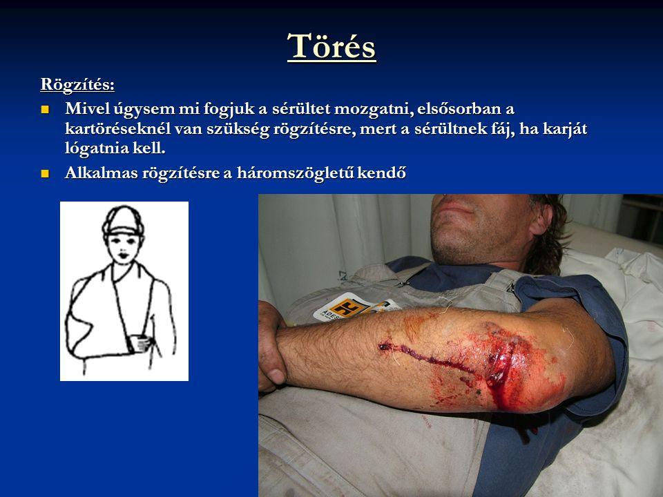 Törés Rögzítés:  Mivel úgysem mi fogjuk a sérültet mozgatni, elsősorban a kartöréseknél van szükség rögzítésre, mert a sérültnek fáj, ha karját lógat