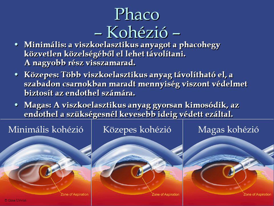 Phaco – Kohézió – • Minimális: a viszkoelasztikus anyagot a phacohegy közvetlen közelségéből el lehet távolítani. A nagyobb rész visszamarad. • Közepe