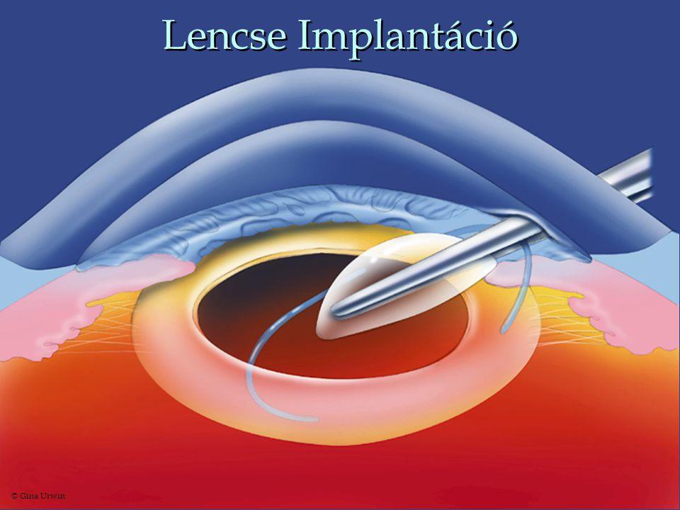 Lencse Implantáció © Gina Urwin