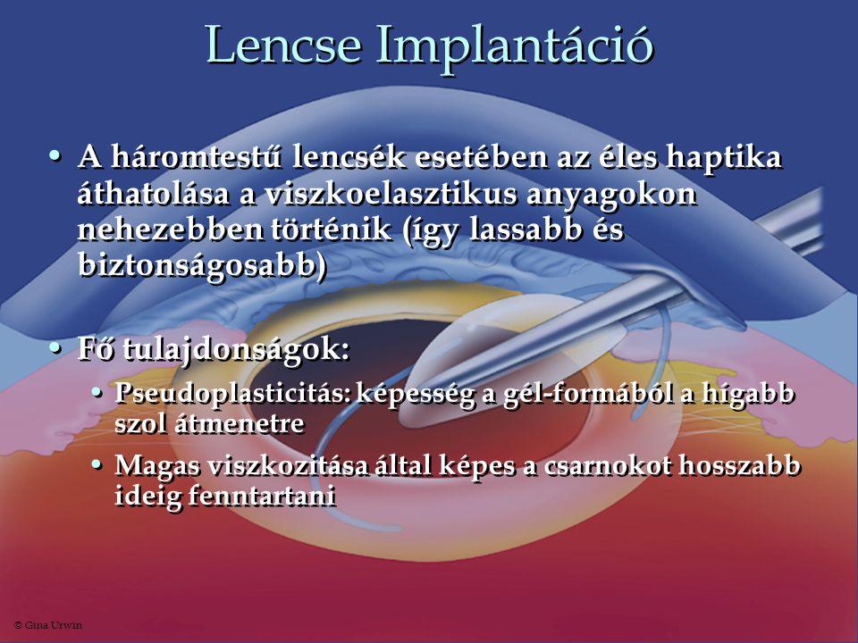 Lencse Implantáció • A háromtestű lencsék esetében az éles haptika áthatolása a viszkoelasztikus anyagokon nehezebben történik (így lassabb és biztons