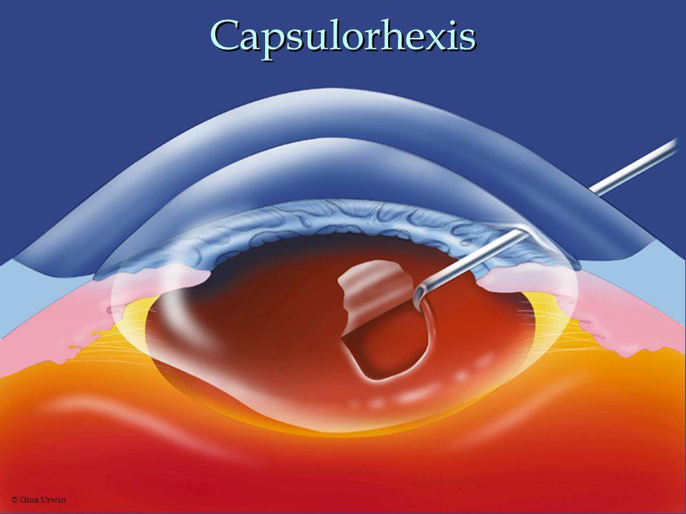 Capsulorhexis © Gina Urwin