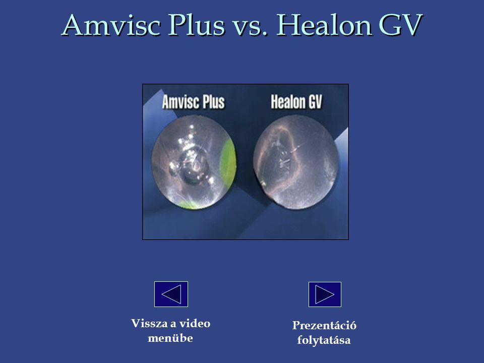 Amvisc Plus vs. Healon GV Vissza a video menübe Prezentáció folytatása