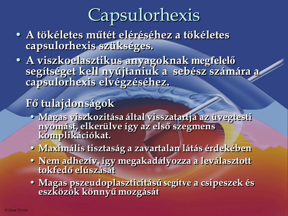 Capsulorhexis • A tökéletes műtét eléréséhez a tökéletes capsulorhexis szükséges. • A viszkoelasztikus anyagoknak megfelelő segítséget kell nyújtaniuk