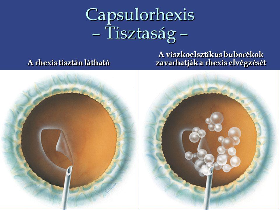 Capsulorhexis – Tisztaság – A viszkoelsztikus buborékok zavarhatják a rhexis elvégzését A rhexis tisztán látható