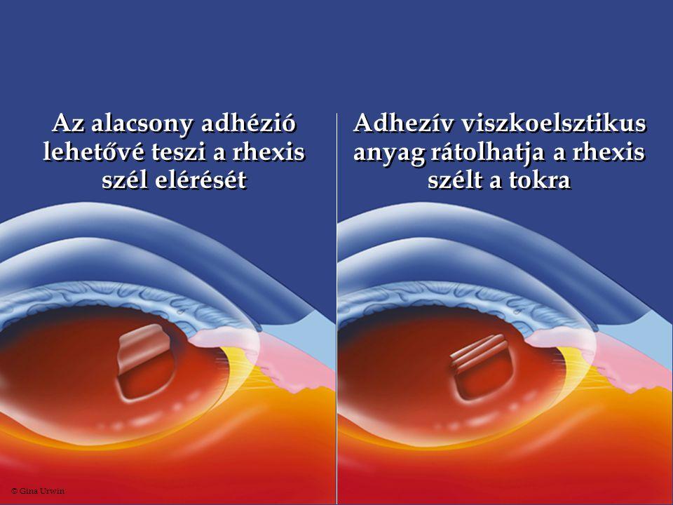 Az alacsony adhézió lehetővé teszi a rhexis szél elérését Adhezív viszkoelsztikus anyag rátolhatja a rhexis szélt a tokra © Gina Urwin