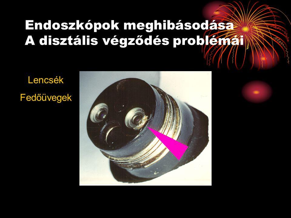 Endoszkópok meghibásodása A disztális végződés problémái Lencsék Fedőüvegek