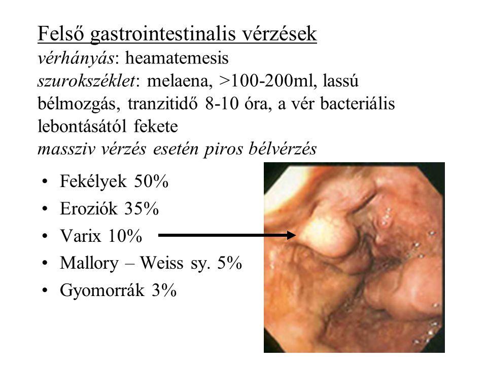 Felső gastrointestinalis vérzések vérhányás: heamatemesis szurokszéklet: melaena, >100-200ml, lassú bélmozgás, tranzitidő 8-10 óra, a vér bacteriális lebontásától fekete massziv vérzés esetén piros bélvérzés •Fekélyek 50% •Eroziók 35% •Varix 10% •Mallory – Weiss sy.