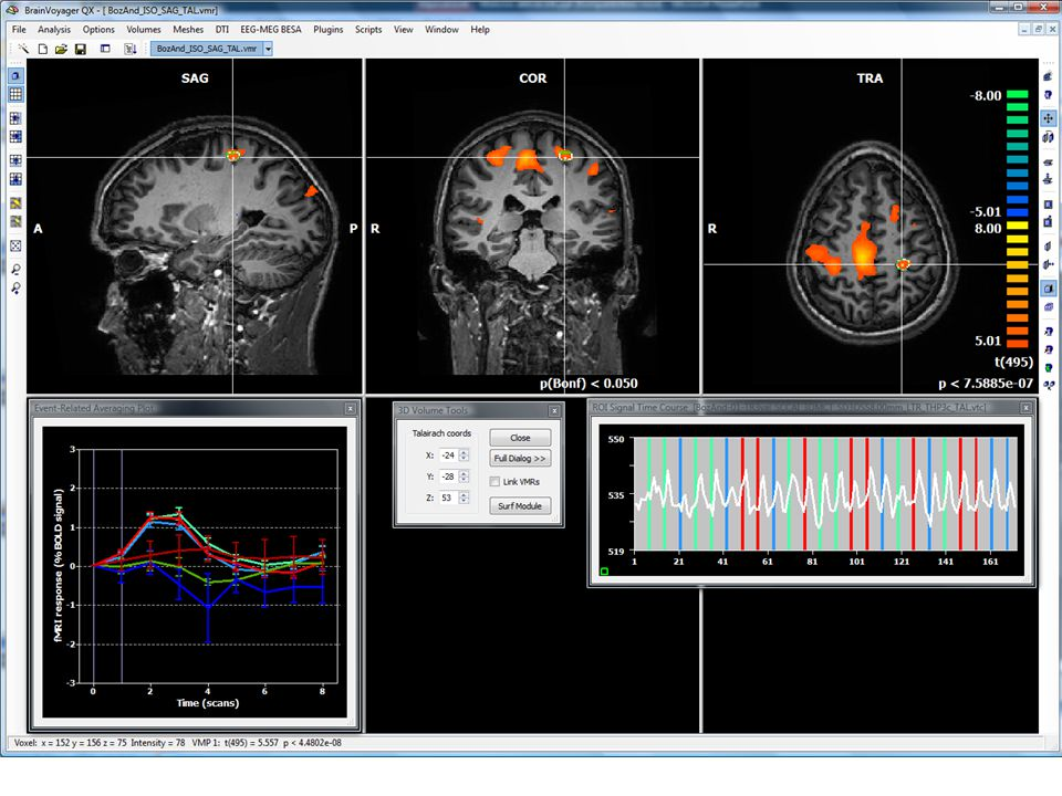 Idegi vezérlés unilaterális és bilaterális erőkifejtések alatt (funkcionális MRI) Dr. Tihanyi József, Sáfár Sándor, Dr. Rácz Levente,