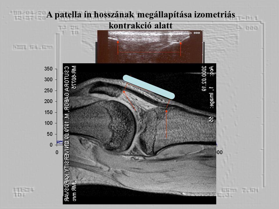 A patella ín hosszának megállapítása izometriás kontrakció alatt