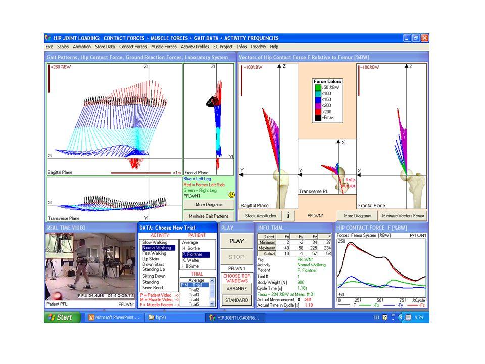 Jeladó Markerek Ultrahang alapú mozgáselemzés