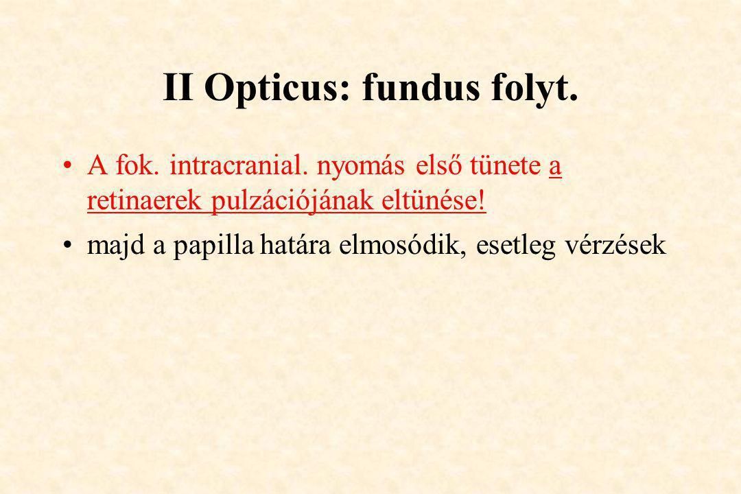 II Opticus: fundus folyt. •A fok. intracranial. nyomás első tünete a retinaerek pulzációjának eltünése! •majd a papilla határa elmosódik, esetleg vérz