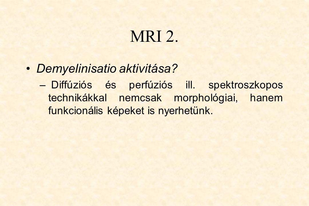 MRI 2. •Demyelinisatio aktivitása? – Diffúziós és perfúziós ill. spektroszkopos technikákkal nemcsak morphológiai, hanem funkcionális képeket is nyerh
