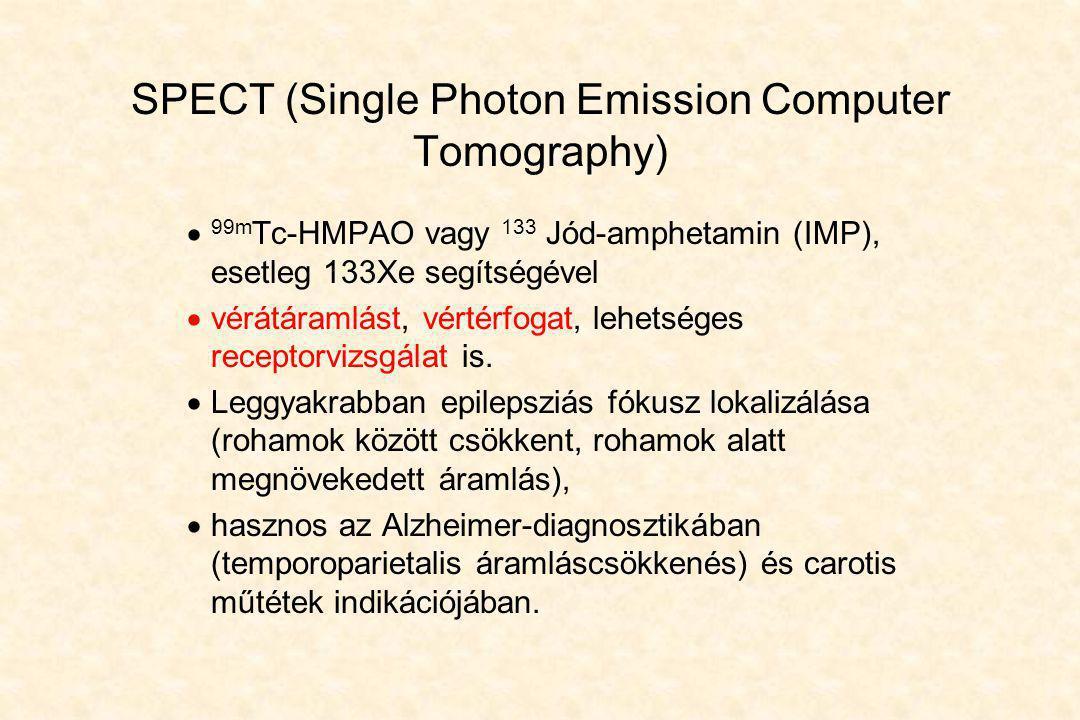 SPECT (Single Photon Emission Computer Tomography)  99m Tc-HMPAO vagy 133 Jód-amphetamin (IMP), esetleg 133Xe segítségével  vérátáramlást, vértérfog