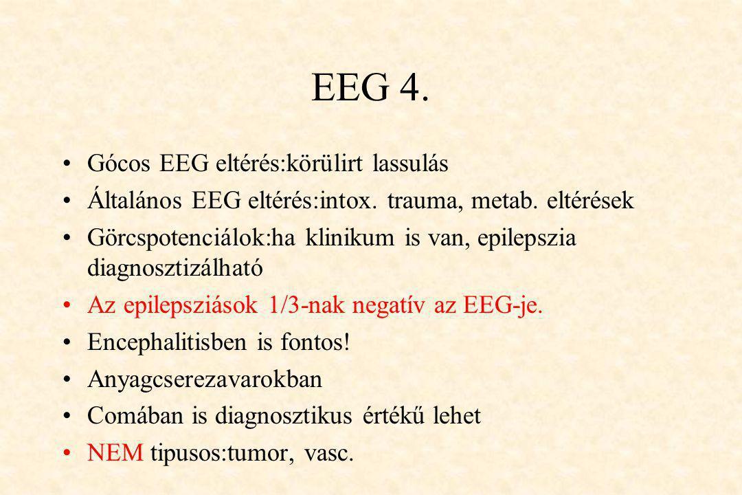EEG 4. •Gócos EEG eltérés:körülirt lassulás •Általános EEG eltérés:intox. trauma, metab. eltérések •Görcspotenciálok:ha klinikum is van, epilepszia di