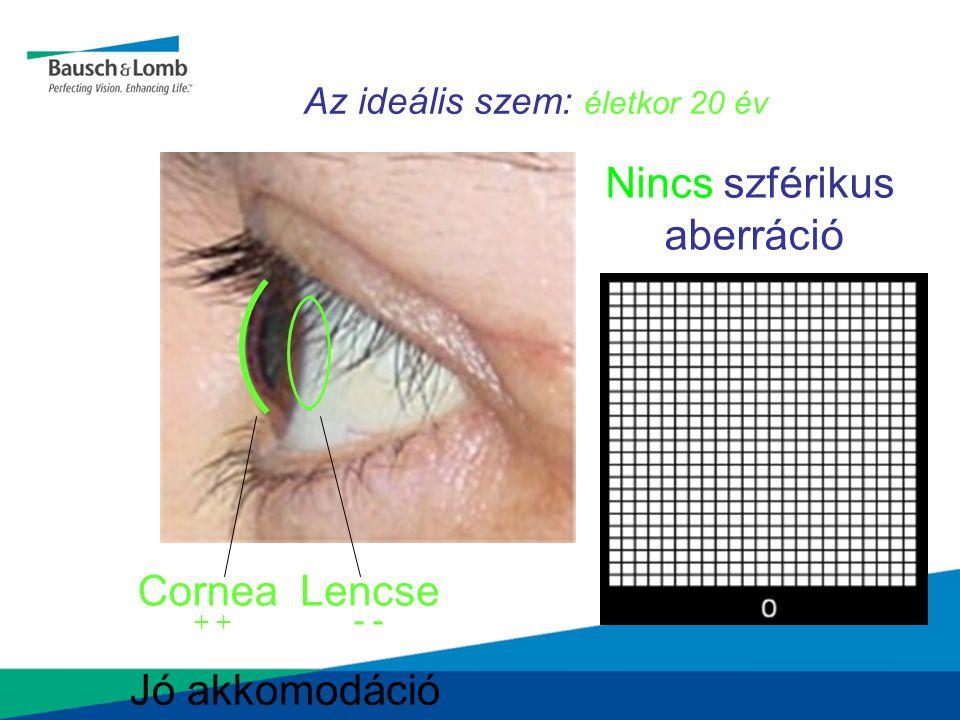 Az ideális szem: életkor 20 év CorneaLencse Nincs szférikus aberráció Jó akkomodáció + -