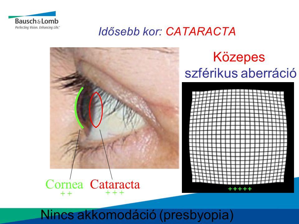 Idősebb kor: CATARACTA CorneaCataracta Közepes szférikus aberráció Nincs akkomodáció (presbyopia) + + + +