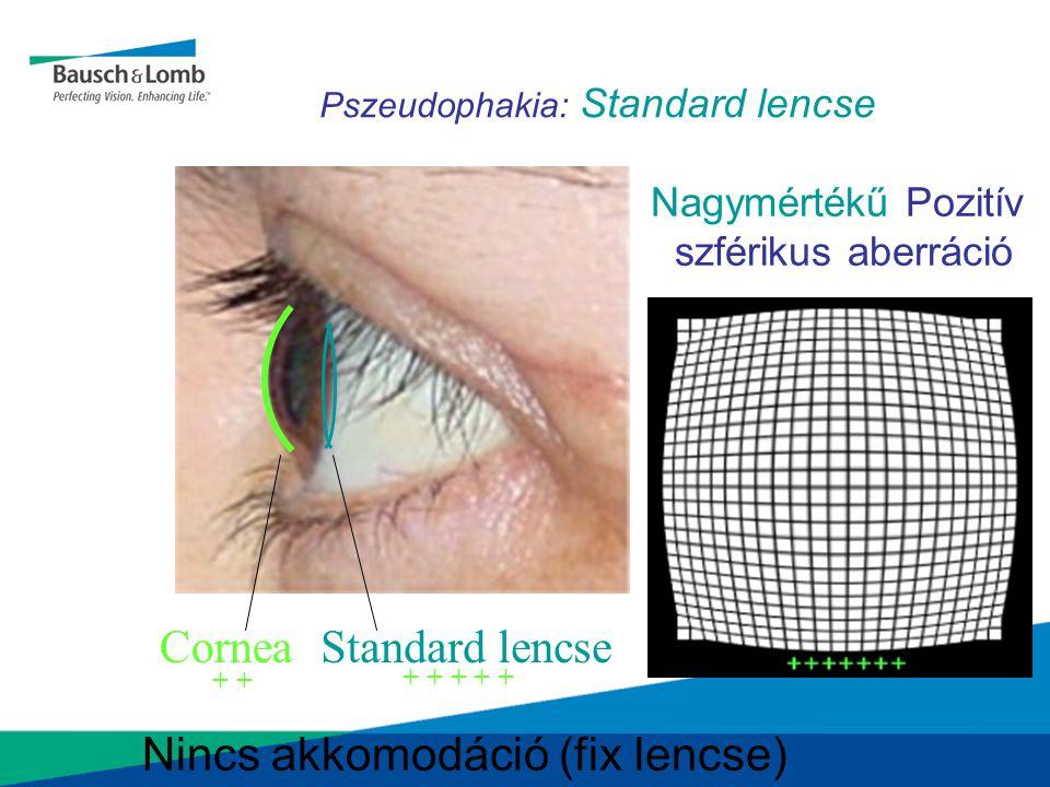 Pszeudophakia: Standard lencse CorneaStandard lencse Nagymértékű Pozitív szférikus aberráció Nincs akkomodáció (fix lencse) + + + + + +