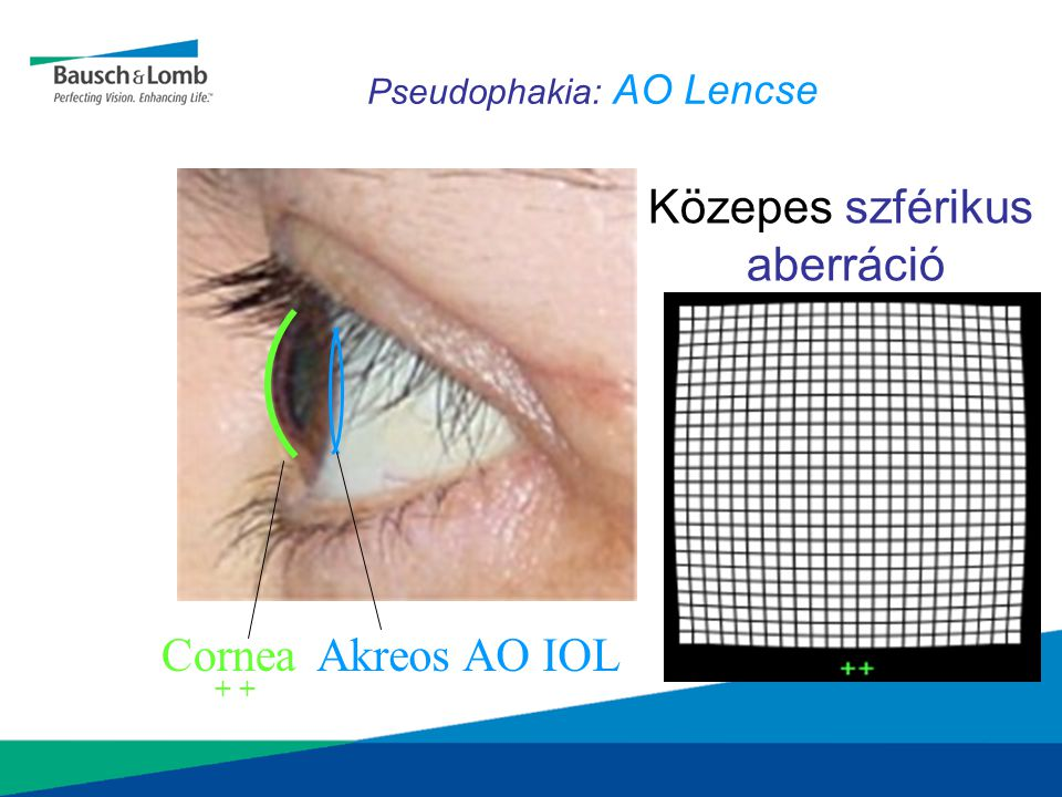 Pseudophakia: AO Lencse CorneaAkreos AO IOL Közepes szférikus aberráció + 0