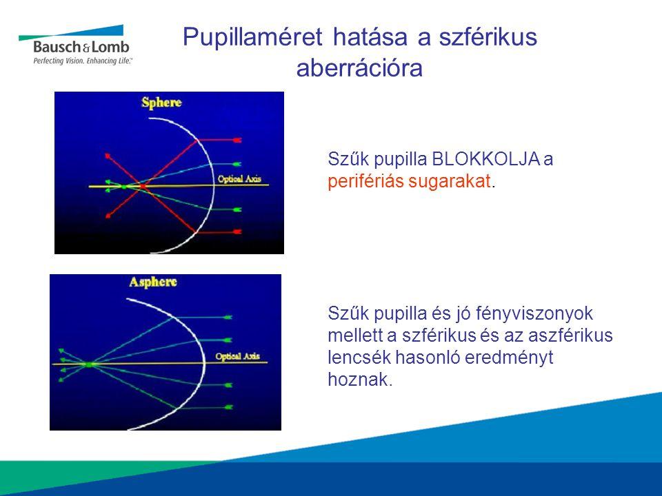 Szűk pupilla BLOKKOLJA a perifériás sugarakat. Szűk pupilla és jó fényviszonyok mellett a szférikus és az aszférikus lencsék hasonló eredményt hoznak.