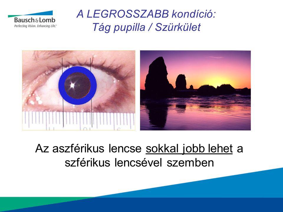 Az aszférikus lencse sokkal jobb lehet a szférikus lencsével szemben A LEGROSSZABB kondíció: Tág pupilla / Szürkület